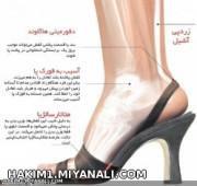 عوارض کفشهای پاشنه بلند