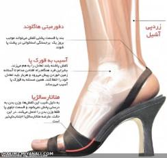 عوارض کفش های پاشنه بلند